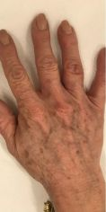 Laserové odstránenie tetovania a pigmentácií - Fotka pred - MUDr. Diana Višňovská