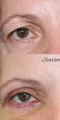 Scarlett Clinic - Fotka pred - Scarlett Clinic