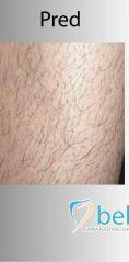 Laserová epilácia, depilácia - odstránenie chĺpkov - Fotka pred - BELLEZA - klinika plastickej chirurgie a laserovej medicíny