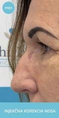 Radiesse (Calcium hydroxylapatit) - Nechirurgická metóda rhinoplastiky / korekcii nosa/ prebieha v lokálnom znecitlivení pri vedomí pacienta s pomocou kyseliny hyalurónovej.  Výplňový materiál kyselina hyalurónová sa injekčne aplikuje do oblasti nosa a koriguje vrodenú alebo získanú zmenu tvaru nosa.  Nos môže byť po aplikácií kyseliny  rovnejší, súmernejší, bez jaziev po úraze.  Výsledný efekt je okamžitý.  Zákrok trvá 15 až 30 minút.  Účinok je od 6 mesiacov do 20 mesiacov.