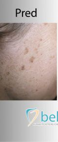 Laserové odstránenie tetovania a pigmentácií - Fotka pred - BELLEZA - klinika plastickej chirurgie a laserovej medicíny
