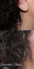 Odstránenie podbradku liposukciou - Fotka pred - Scarlett Clinic
