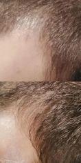 PRP – Plazma terapia (Drakula terapia) - Dracula terapia pre rast vlasov