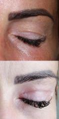 Scarlett Clinic - Operácia očných viečok (Blepharoplastika)