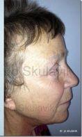 Facelift, SMAS facelifting - Fotka pred - Dr. med. Jozefina Skulavik