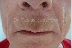 Lifting pier - Fotka pred - Dr. med. Jozefina Skulavik
