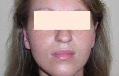 Operácia uší (Otoplastika)   - Fotka pred - Esthetic, s.r.o.