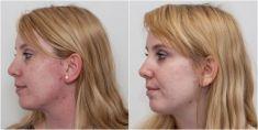 Laserová liečba akné - Fotka pred