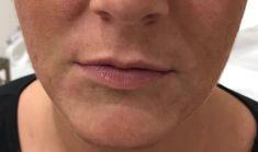 Zväčšenie pier - Fotka pred - Klinika YES VISAGE - klinika estetickej medicíny a plastickej chirurgie