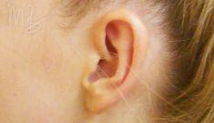 Operácia uší (Otoplastika)   - Fotka pred - doc. MUDr. M. Boháč PhD.