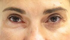 Operácia očných viečok (Blepharoplastika) - Fotka pred - doc. MUDr. M. Boháč PhD.
