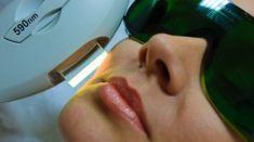 Laserová liečba akné - Fotka pred - ENVY klinika estetickej medicíny