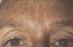 Laserové odstránenie tetovania a pigmentácií - Fotka pred - Esthetic, s.r.o.