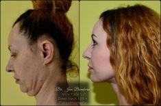 Facelift, SMAS facelifting - Fotka pred - MUDr. Ján Bumbera