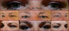 MUDr. Ján Bumbera - Operácia očných viečok (Blepharoplastika) horných viečok