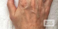 Radiesse (Calcium hydroxylapatit) - Fotka pred - MUDr. Vanda Martišková