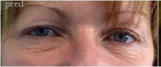 Operácia očných viečok (Blepharoplastika) - Fotka pred - Eveclinic Bratislava