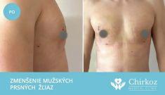 Zväčšenie prsníkov (Augmentácia) - Fotka pred - Chirkoz Medical Clinic