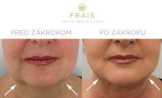 Laserová liposukcia - Laserová liposukcia LipoLife 3G voblasti podbradku apo bokoch brady (kontrola po 2 týždňoch)