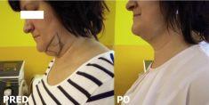 Liposukcia laserová - SmartLipo - Fotka pred - MUDr. Michal Jalčovík