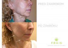 Facelift, SMAS facelifting - Časový odstup medzi fotografiami pred a po je 2 týždne.