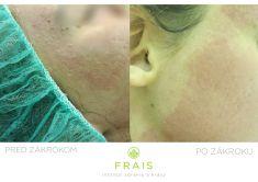 Frakčný laserový resurfacing - Fotka pred - FRAIS - Inštitút zdravia a krásy