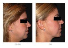 Odstránenie podbradku - Fotka pred - Klinika YES VISAGE - klinika estetickej medicíny a plastickej chirurgie