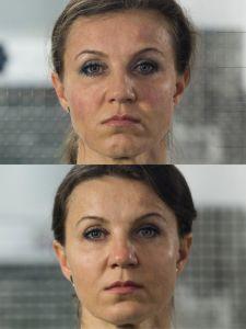 Mezonite - Fotka pred - ENVY klinika estetickej medicíny
