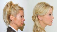 Facelift, SMAS facelifting - Fotka pred - MUDr. Barbora Brezová PhD.