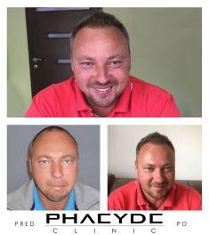 PHAEYDE Clinic - Fotka pred - PHAEYDE Clinic