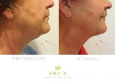 Liposukcia - Podbradok - Laserová liposukcia SmartLipo, fotografia po 3 týždňoch od zákroku. Operoval MUDr. Martin Dziuban