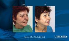 Facelift, SMAS facelifting - Fotka pred - MUDr. Zdenko Zamboj