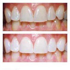 Bielenie zubov - Fotka pred