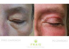 Plastická chirurgia - Inštitút zdravia a krásy FRAIS - Fotka pred - Plastická chirurgia - Inštitút zdravia a krásy FRAIS