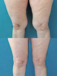 Liposukcia tumescenčná - Fotka pred - ENVY klinika estetickej medicíny
