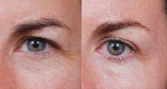 Klinika YES VISAGE - klinika estetickej medicíny a plastickej chirurgie - Fotka pred - Klinika YES VISAGE - klinika estetickej medicíny a plastickej chirurgie