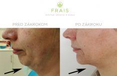 Laserová liposukcia - Laserová liposukcia LipoLife 3G voblasti podbradku (kontrola po 3 týždňoch) vkombinácii smodeláciou brady (kontrola po 7 dňoch)