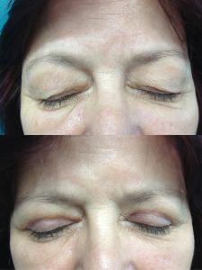 ENVY klinika estetickej medicíny - Fotka pred - ENVY klinika estetickej medicíny
