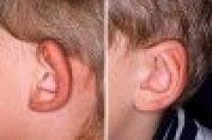 Operácia uší (Otoplastika)   - Fotka pred - CHIRONAX Medicentrum s.r.o.
