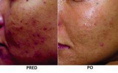 Laserová liečba akné - Fotka pred - Eveclinic Bratislava