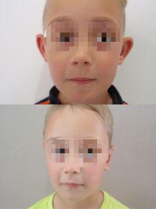 Operácia uší (Otoplastika)   - Fotka pred - ENVY klinika estetickej medicíny