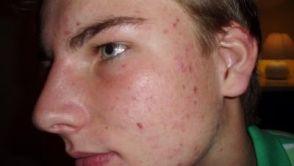 Čo je nové v liečbe akné?