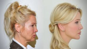 Plastická operácia tváre - Facelift a YES Lifting