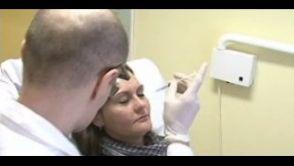 Aplikácia botulotoxínu