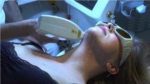 Jalčovík laserová epilácia