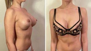 Všetko, čo ste chceli vedieť o výmene prsných implantátov