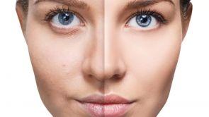 Skinbooster – Vital Injector