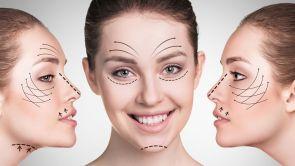 Face-lift, SMAS face-lift