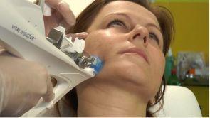 Ošetrenie tváre s Vital injectorom