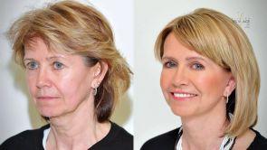 PREMENA: Plastická operácia tváre - Facelift a viečka - pani Zdena na Klinike YES VISAGE